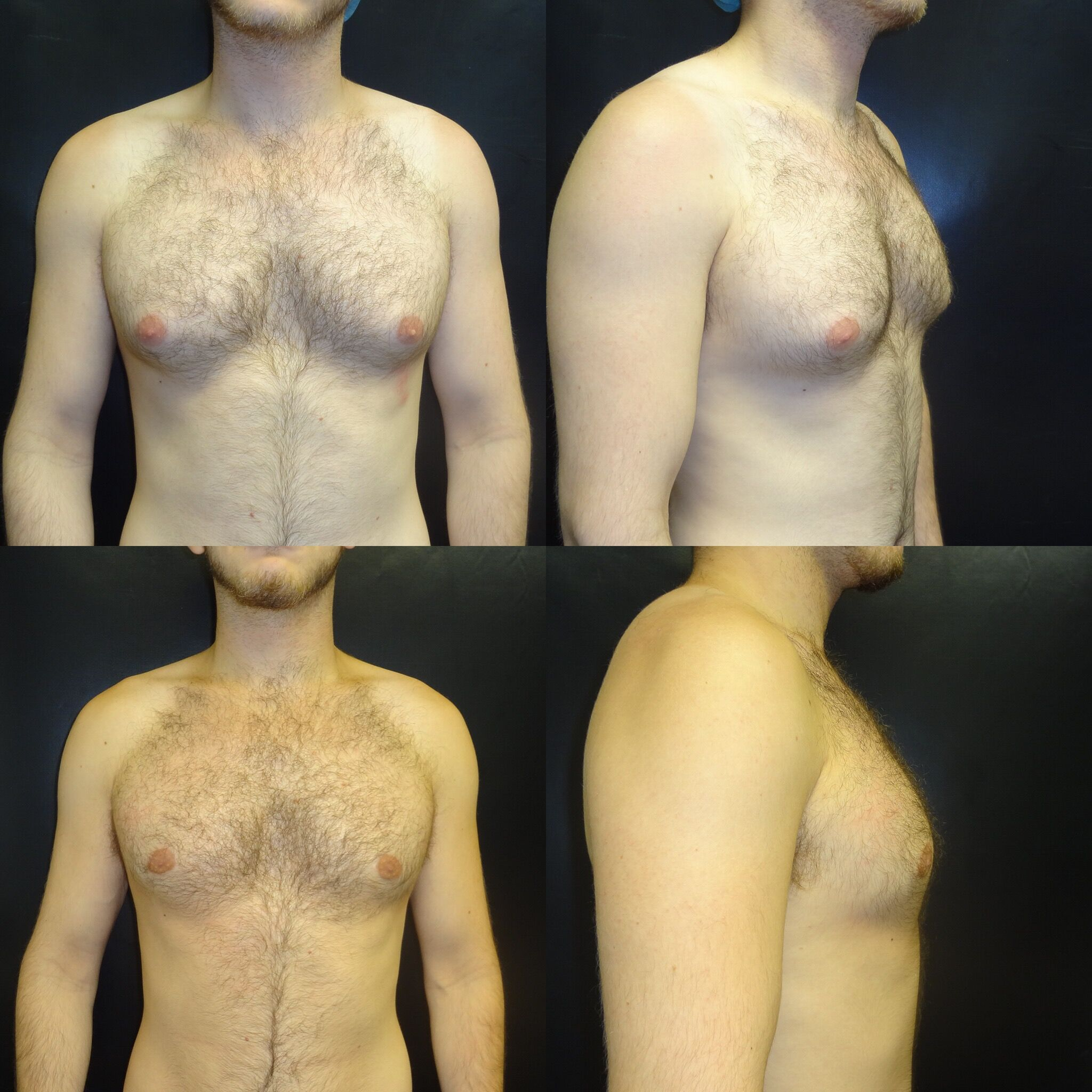 Chest-Before-After