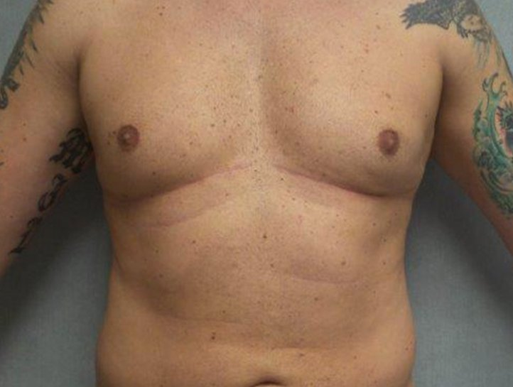 Chest-After