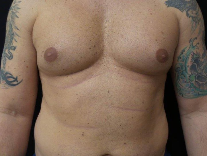 Chest-Before