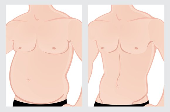 Tummy Tuck Terminology Manhattan