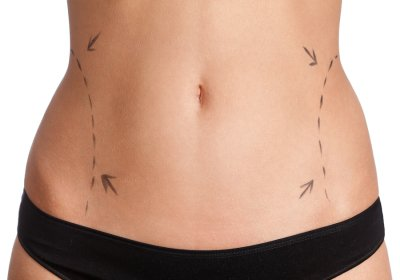 What to Expect from Liposuction New York