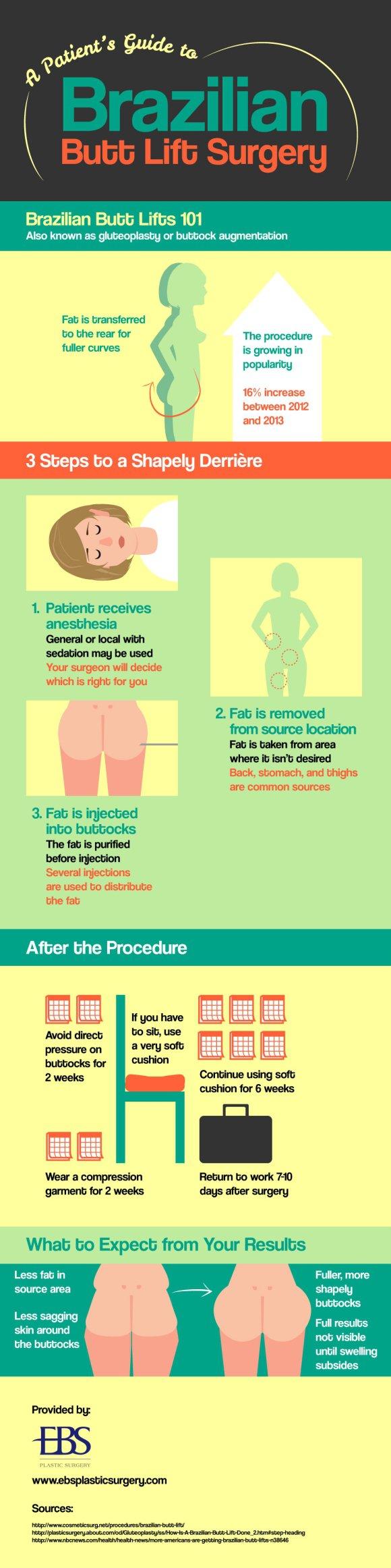 Brazilian butt lift infographic manhattan