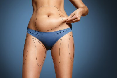 liposuction manhattan