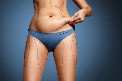 liposuction manhattan