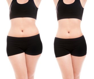 liposuction procedure facts NYC