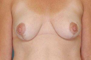 Manhattan Breast Lift after 5