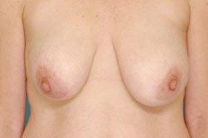 Manhattan Breast Lift before 5